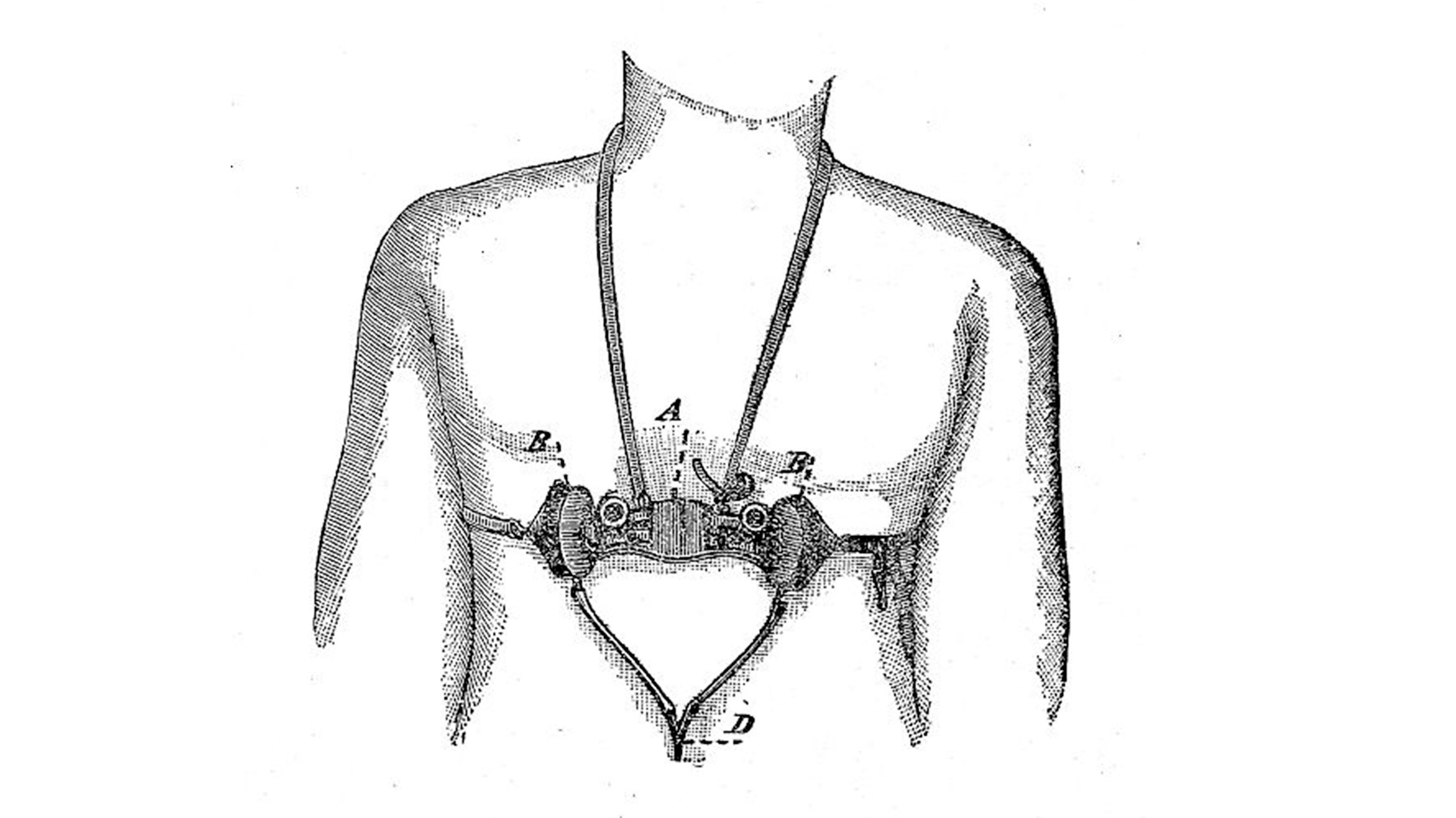 The drawing shows an analog device that is fixed on the chest of an individual via some straps around the neck and around the chest. The device seems to have some mechanical parts. And the drawing is using letters from A to D to legend these different functional parts. A pneumograph, also known as a pneumatograph or spirograph, is a device for recording velocity and force of chest movements during respiration. The device was primarily used as a lie detector.